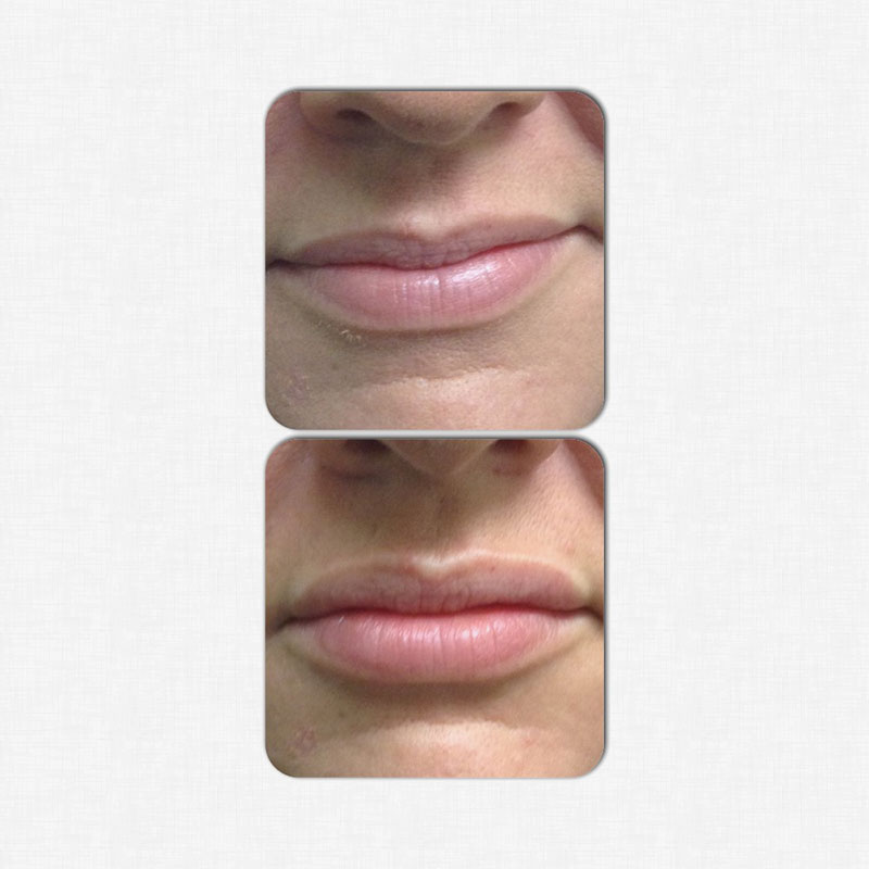 juvederm-lips